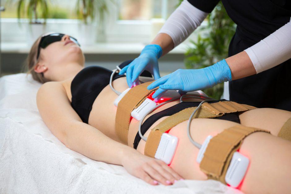 Lipoláser: lo último en tratamientos remodelantes con efectos inmediatos