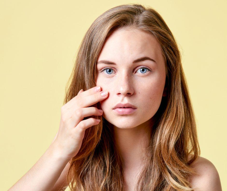 Prevén la piel acneica en adolescentes. ¡Sigue estos consejos!
